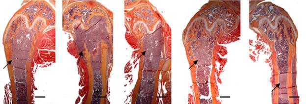 """Bone metastasis mouse"" por Lauren K. Dunn, Khalid S. Mohammad, Pierrick G. J. Fournier, C. Ryan McKenna, Holly W. Davis, Maria Niewolna, Xiang Hong Peng, John M. Chirgwin, Theresa A. Guise. Licencia CC BY 2.5 Generic"